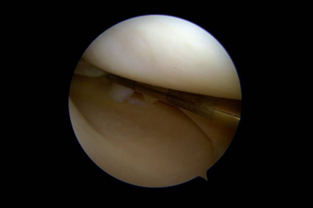"""Arthroscopic view of a meniscal tear of the medial compartment of the right knee Arthroscopic view of a meniscal tear of the medial compartment of the right knee. The tear of the posterior part of the medial meniscus, has resulted in a loose flap (anterior of the rupture). The flap tends to move into the center of the joint and results in pain, swelling, popping, and giving way. Many patients describe the condition as """"walking with a pebble/small piece of rock inside the shoe"""". When a meniscal tear causes little trouble, it can be left alone untreated. Otherwise, the flap should be removed by arthroscopic surgery. Meniscal tears never heal. surgery stock pictures, royalty-free photos & images"""