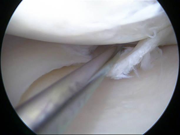 artroscopica vista di un segmento lacerato realizzato approfondimento della goccia con gancetto - menisco foto e immagini stock