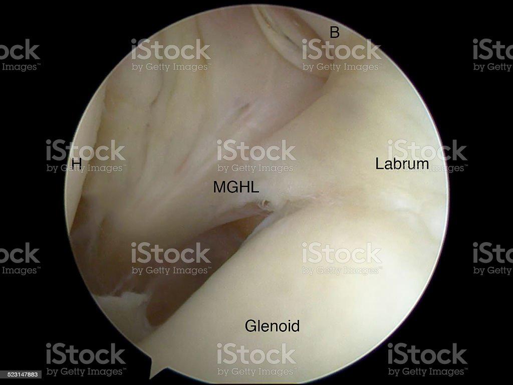 Fotografía de Buford Artroscópica Vista Del Complejo De Anatomía ...