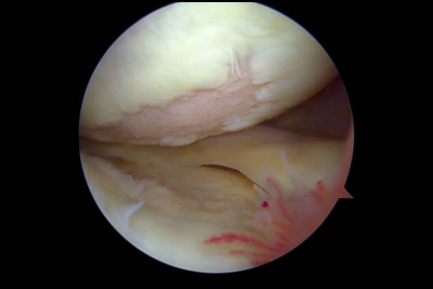 Arthroscopic view of human knee suffering from osteoarthritis An arthroscopic view of human knee suffering from osteoarthritis (during knee arthroscopy performed by an orthopaedic surgeon at an out patient clinic). The image shows the medial compartment. The articular cartilage has been worn off reviling the underlying subchondral bone, especially on the surface of the medial femoral condyle (upper half of the image). The medial tibia plateau (lower half) has less cartilage loss. The medial meniscus is seen in the middle part to the right. In front in the lower left quadrant is inflamed synovial (synovitis). cartilage stock pictures, royalty-free photos & images