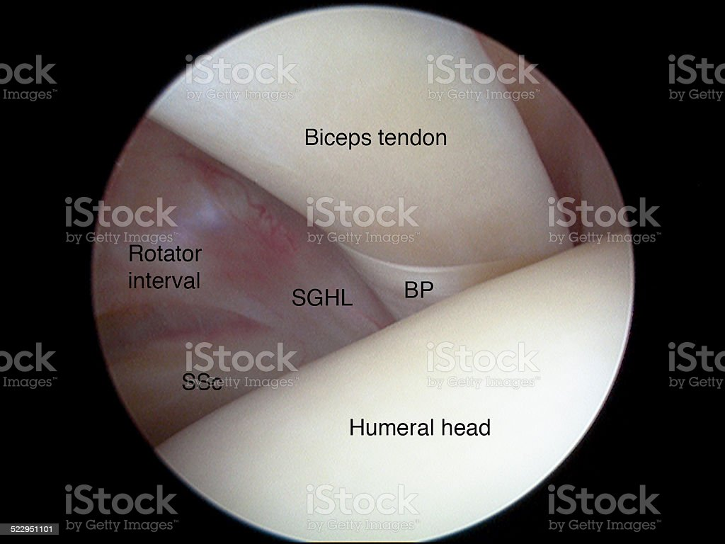Arthroscopic view of long head of biceps tendon of shoulder stock photo