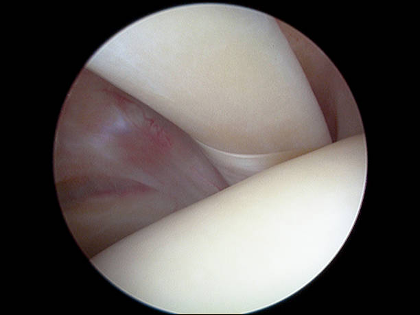 Arthroscopic view of long head of biceps tendon of shoulder Arthroscopic view (from posterior portal) of the intraarticular part of the long head of biceps (brachii) tendon and the biceps pulley (sling) in a right human shoulder. The humeral head is seen in the lower part of the image. surgery stock pictures, royalty-free photos & images