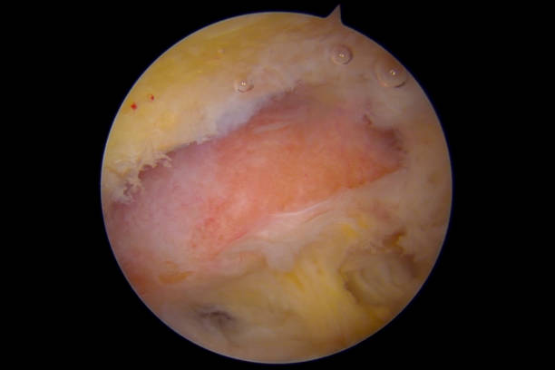 Arthroscopic view of the acromioclavicular joint of the right shoulder suffering from osteoarthritis Arthroscopic view from a lateral portal of the subacromial space of a right shoulder. In view is the acromioclavicular joint (AC joint) suffering from osteoarthritis (OA) resulting in softening, fibrillation and, eventually, total loss of the articular cartilage, leading to exposure of (denuded) subchondral bone. The image was captured after the performance of an acromioplasty to treat a coexisting subacromial pain syndrome (SAPS, often called impingement). AC joint OA may be treated by surgical excision (removal) of the distal 5-7 mm of the clavicle (or collar bone or clavicula) when rehabilitation fails to relieve pain and regain normal function. AC joint OA may be due to trauma (secondary post-traumatic OA) or occur as a chronic degenerative disorder (primary OA). The image was captured with a 4mm 30 degrees arthroscope. A copy of the same image with explaining text (labels) added onto the image, to aid a designer with limited medical knowledge, has been included in the same series. The photographer is a medical university professor and specialist in orthopedic surgery and spends a lot of effort making sure that the captions and labels are 100% correct. surgery stock pictures, royalty-free photos & images