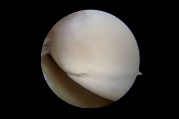 Arthroscopic view of the medial compartment of the right knee suffering torn articular cartilage Arthroscopic view of the medial compartment of the right (human) knee suffering from torn (lacerated) articular cartilage on the femoral condyle. Articular cartilage injuries have very little potential for healing and often progress in size and level of symptoms (which include pain, catching and swelling) and eventually lead to osteoarthritis. The image was captured with a 30 degrees 4mm arthroscope placed in the intercondylar space with the knee flexed to about 30 degrees. surgery stock pictures, royalty-free photos & images