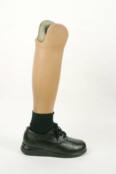 Artifical Leg and Foot, Prosthesis stock photo
