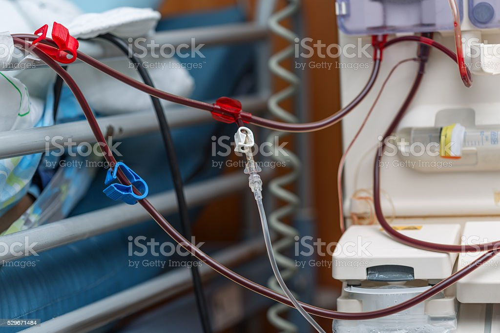 Artificial kidney. Blood transfusion stock photo