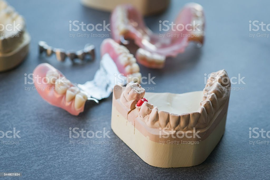 Artificial replacement teeth on a dark table - foto de stock