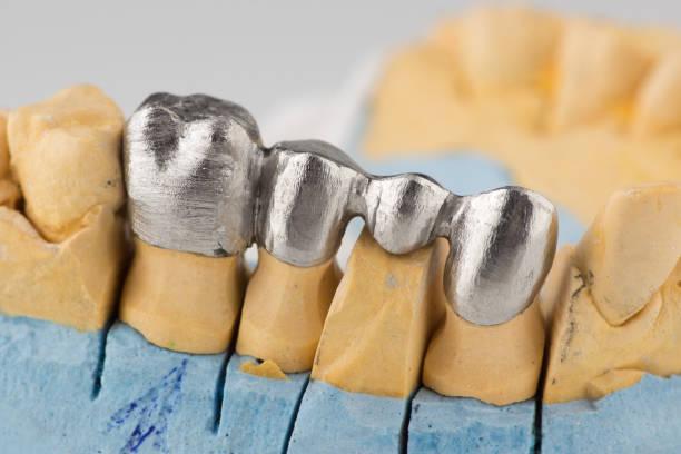 Artificial tooth crown – zdjęcie