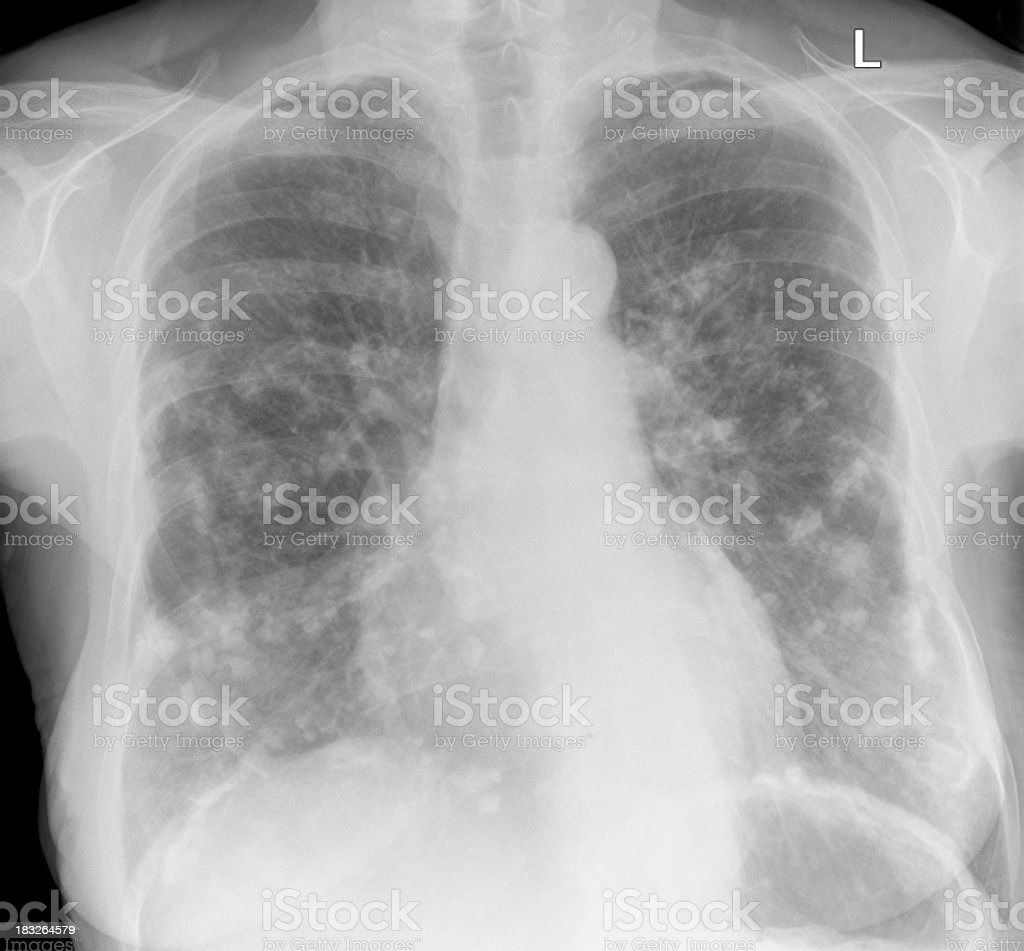 asbestos related pleural plaques on chest xray of woman stock photo