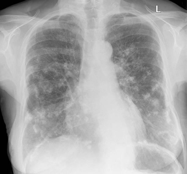 Amianto correlati placche pleurico sul petto, radiografie di donna - foto stock