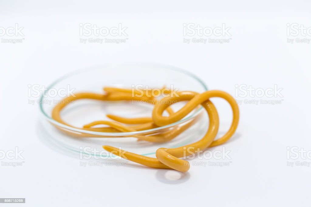 Ascariasis is a disease caused by the parasitic roundworm Ascaris lumbricoides for education in laboratories. stock photo