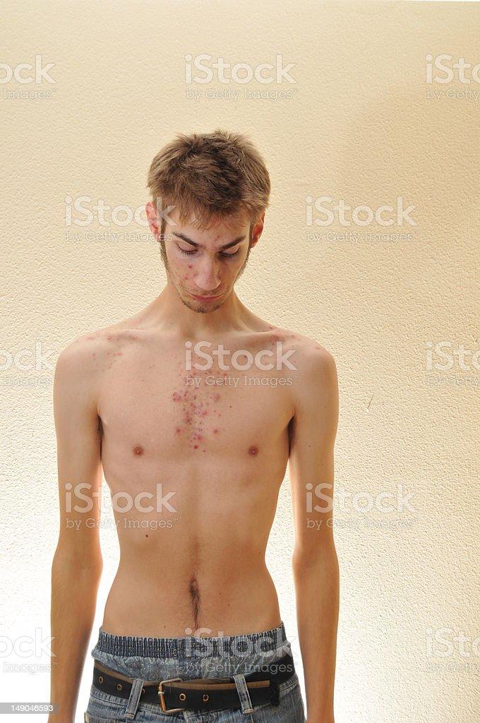 Ashamed Shirtless Teenager stock photo