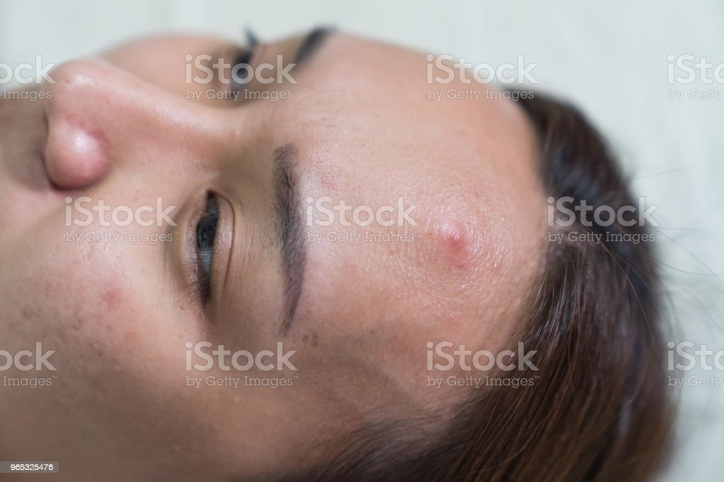 Asian beautiful woman is acne skin problem on forehead. zbiór zdjęć royalty-free