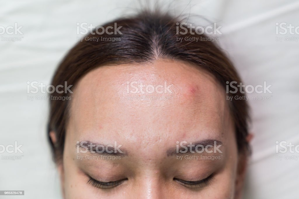Asian beautiful woman is acne skin problem on forehead. royalty-free stock photo
