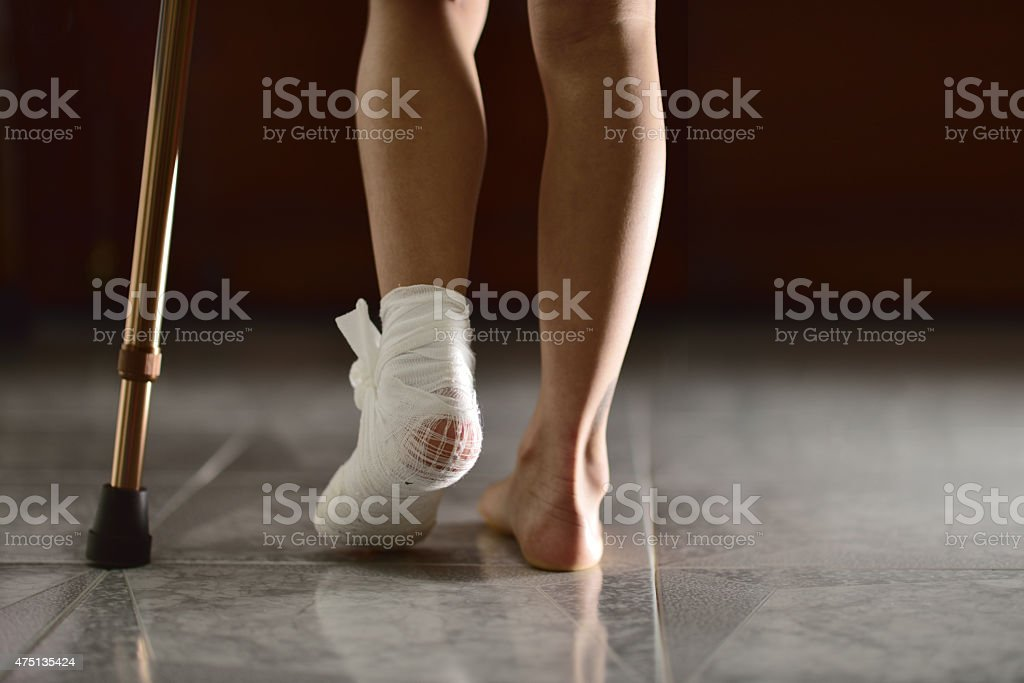 Asian child Cruches And Cast At injuried Leg stock photo