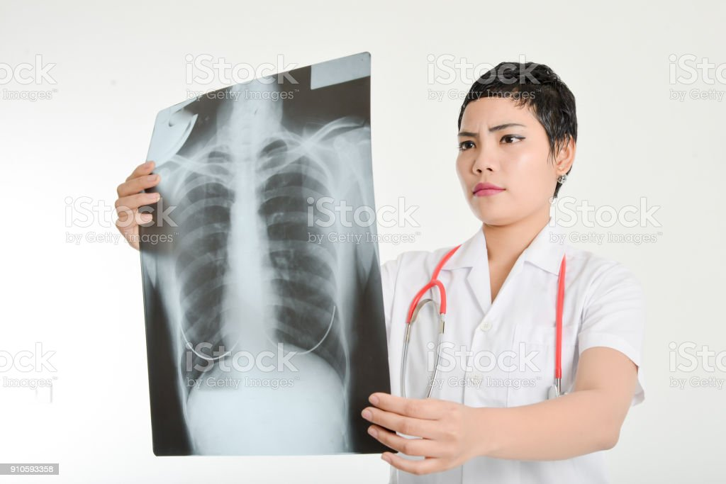 Asian doctor examining a lung radiography stock photo