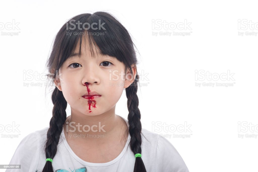 Asian girl with bleeding from the nose stock photo