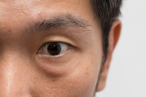 istock asian male man face oily skin with big eye bag at the left eye 865234326