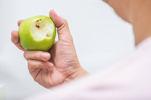 Hombre asiático de refrigerios y verde manzana scurvy - foto de stock