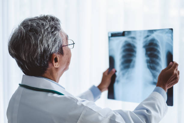 Asian man doctor diagnose patient x-ray  radiography film, asian medical concept Asian man doctor diagnose patient x-ray  radiography film, asian medical concept human lung stock pictures, royalty-free photos & images