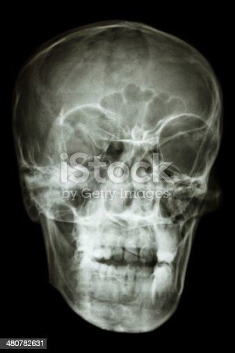 istock asian people's skull (Thai people) 480782631