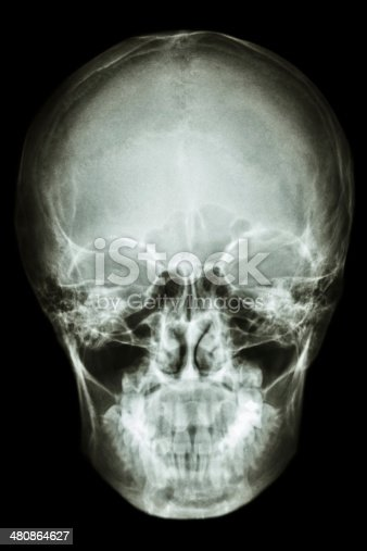 istock asian people's skull (Thai people) 480864627