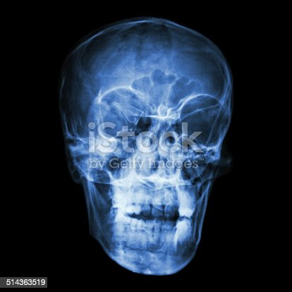 istock asian people's skull (Thai people) 514363519