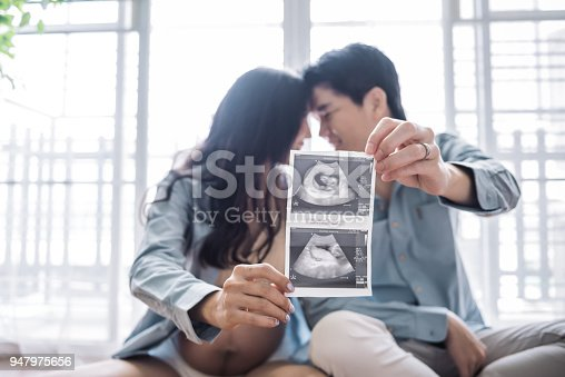 Asian Pregnant woman and husband holding ultrasound scan photo.