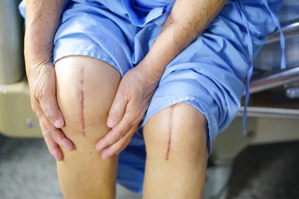 アジアのシニア女性患者は病院のベッドの上彼女の傷の手術膝関節関節を表示します。 ストックフォト
