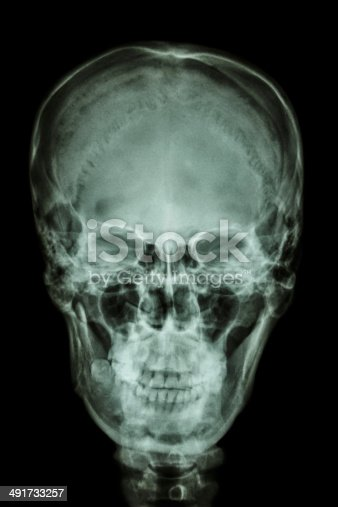 istock asian skull (Thai people) 491733257