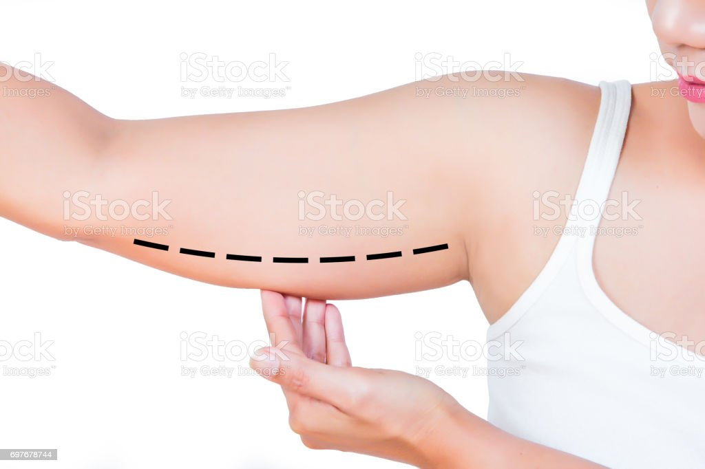 asian woman checking her upper arm stock photo