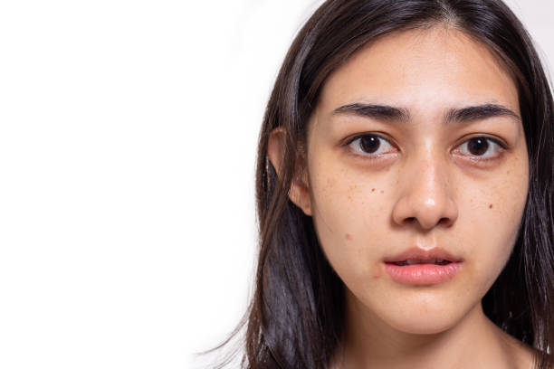 Asian woman gets freckles, blemish, pimple and dull skin on her face. Attractive beautiful Asia woman get eye dark circles, She get no makeup on face. She look unhappy. isolated on white, copy space stock photo
