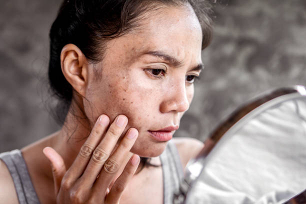 Asian woman having skin problem checking her face with dark spot, freckle from UV light Asian woman having skin problem checking her face with dark spot, freckle from UV light in mirror dark spots face stock pictures, royalty-free photos & images