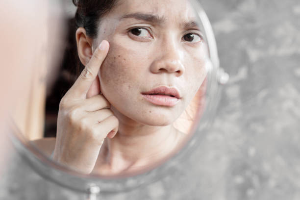 Asian woman having skin problem checking her face with dark spot, freckle from uv light in mirror Asian woman having skin problem checking her face with dark spot, freckle from uv light in mirror dark spots face stock pictures, royalty-free photos & images
