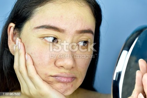 istock Asian woman looking at herself in the mirror, Female feeling annoy about her reflection appearance show the aging facial skin signs, wrinkles, dark spot, pimple, acne scar, large pores, dull skin. 1151957532