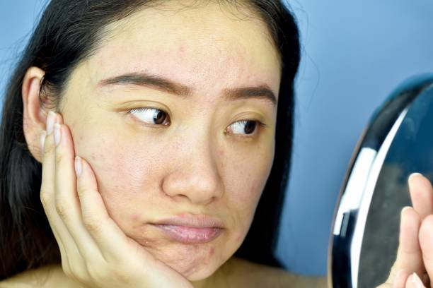 Asian woman looking at herself in the mirror, Female feeling annoy about her reflection appearance show the aging facial skin signs, wrinkles, dark spot, pimple, acne scar, large pores, dull skin. Asian woman looking at herself in the mirror, Female feeling annoy about her reflection appearance show the aging facial skin signs, wrinkles, dark spot, pimple, acne scar, large pores, dull skin. arid stock pictures, royalty-free photos & images