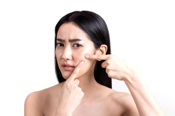Asiatische Frau Pickel auf Gesicht betrachten. Junge Frau versuchen, ihre Pickel entfernen. Frau Haut Pflegekonzept. Isoliert auf weißem Hintergrund. – Foto