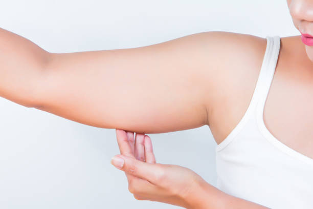 asian woman showing her fat upper arm stock photo