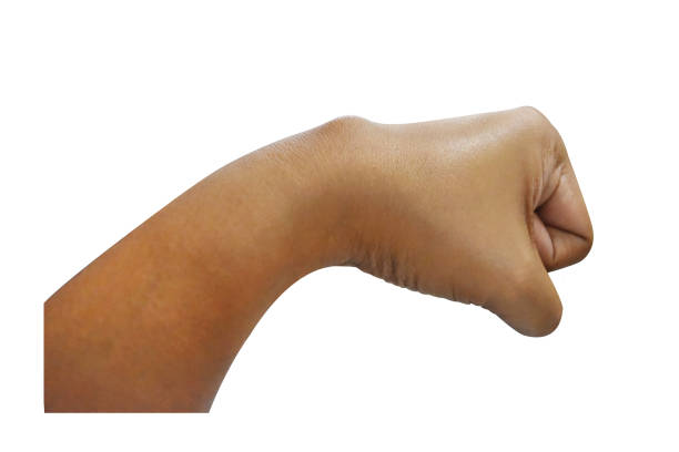 asian women age thirty sick with disease, the cyst at the wrist  isolated on white background with clipping path. carpal ganglion cyst in medical name. - cyst stock pictures, royalty-free photos & images