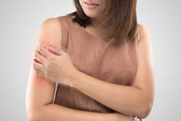 femmes asiatiques qui sont des démangeaisons de piqûres d'insectes sur fond de mur gris. / les soins de santé et de la médecine. / les gens avec la notion de problème de peau. - psoriasis photos et images de collection