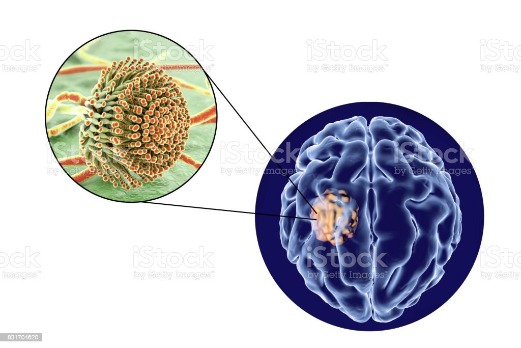 Aspergilloma of the brain and close-up view of fungi Aspergillus stock photo