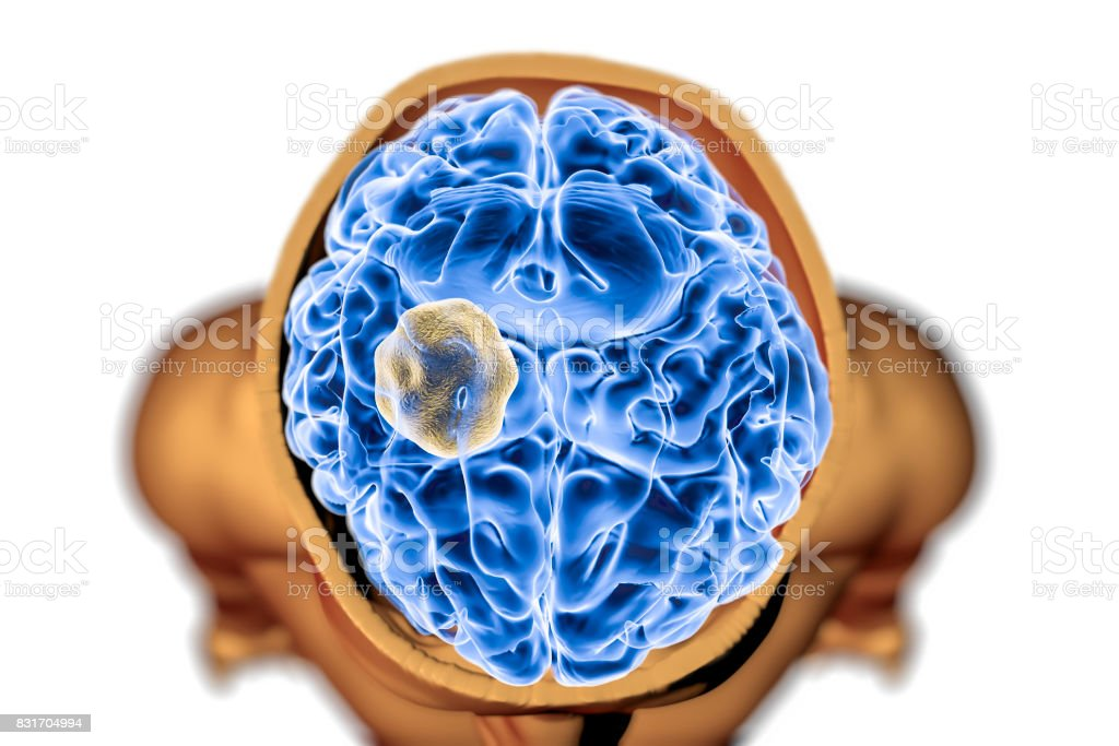 Aspergilloma of the brain stock photo