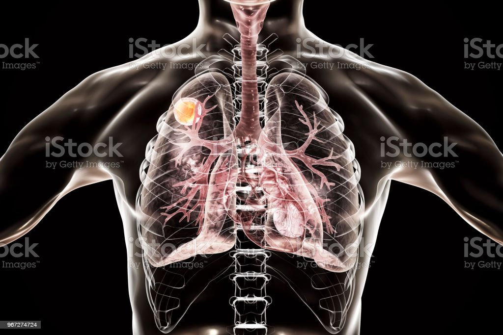 Aspergilloma of the lung stock photo