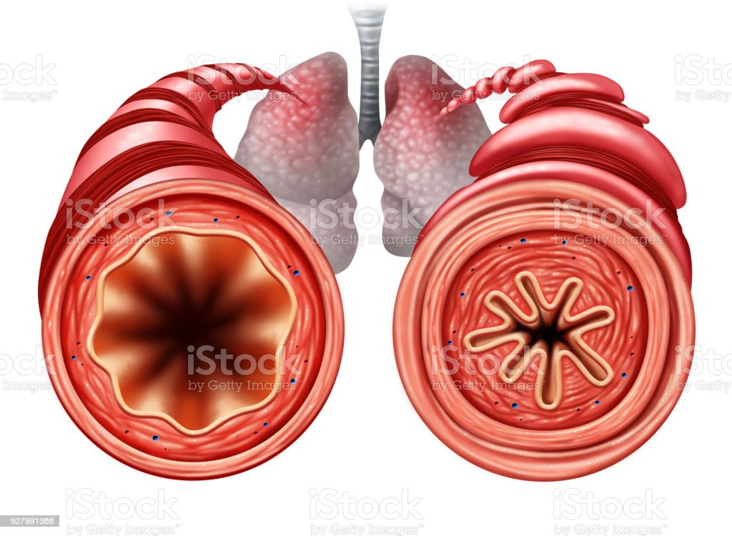 Asthma Diagram stock photo