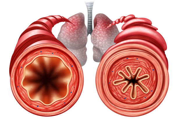 asthma diagram - respiratory tract stock photos and pictures