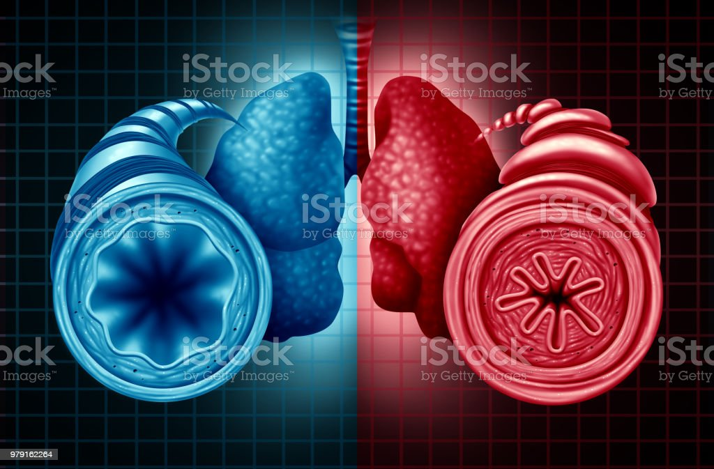 Asthma Health Diagnosis stock photo