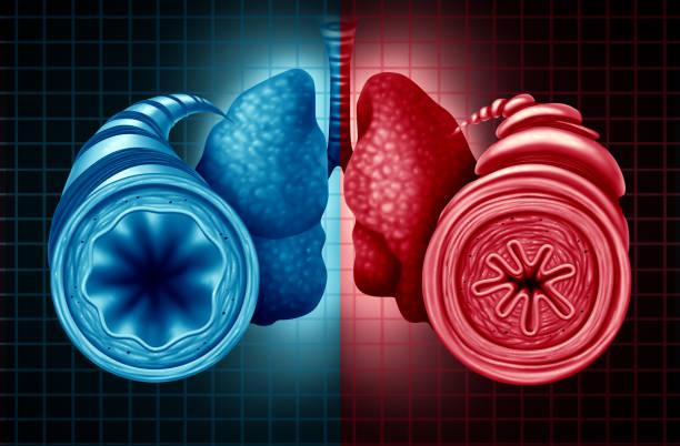 Asthma Health Diagnosis stock photo