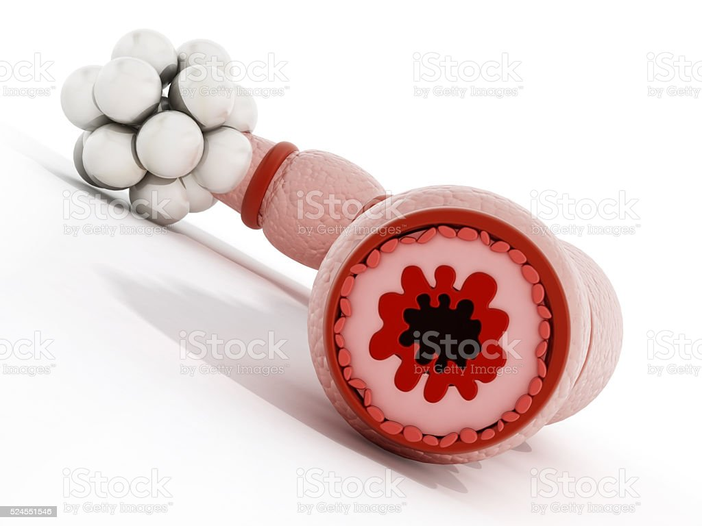Asthmatic bronchiole stock photo