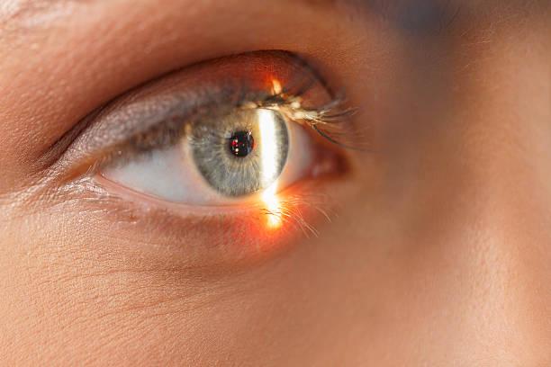 Óptico en el examen oftalmológico optometrista medical examen ocular - foto de stock
