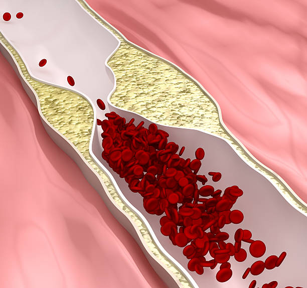 atherosclerosis disease - clogged arteries (arterial plaque) - janulla stock pictures, royalty-free photos & images